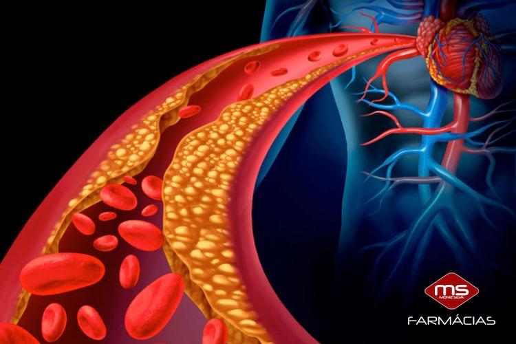 colesterol-o-que-e